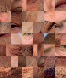 grid of skin